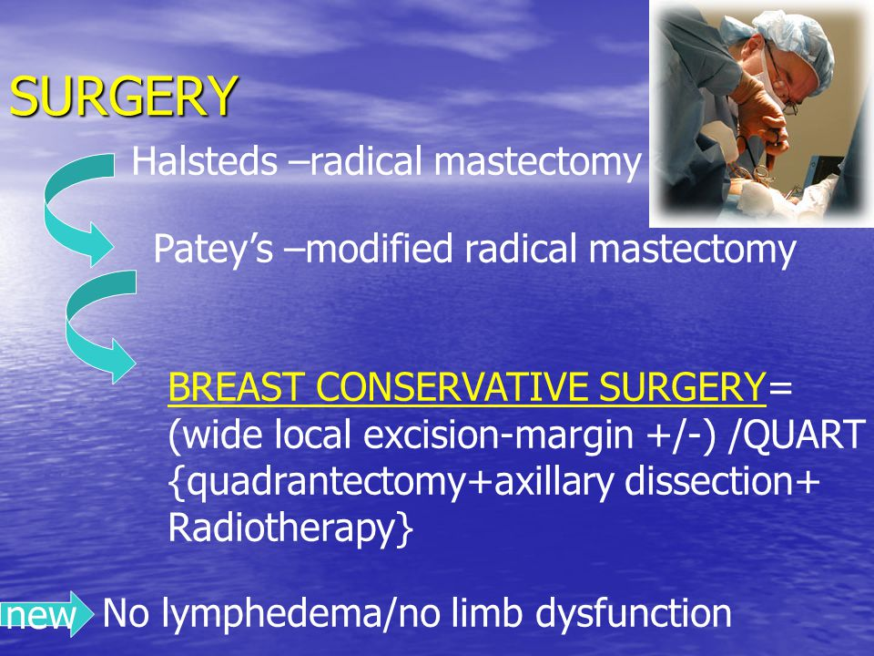 SURGERY Halsteds –radical mastectomy Patey's –modified radical mastectomy BREAST CONSERVATIVE SURGERY= (wide local excision-margin +/-) /QUART {quadrantectomy+axillary dissection+ Radiotherapy} new No lymphedema/no limb dysfunction