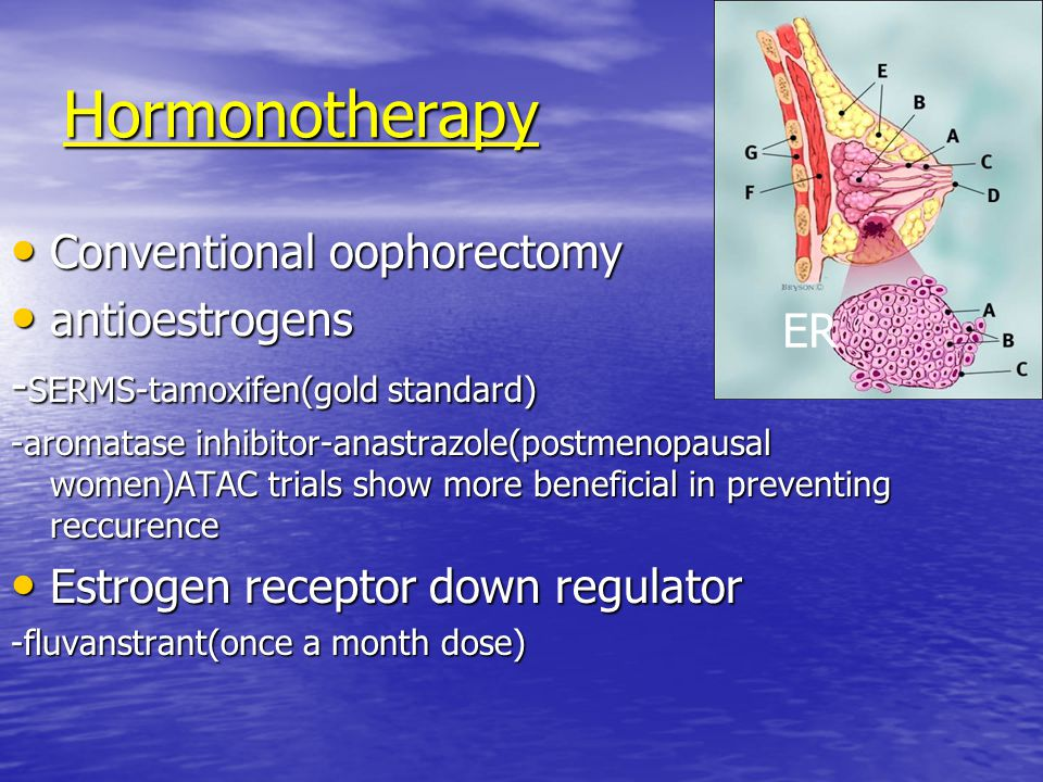 Hormonotherapy Conventional oophorectomy Conventional oophorectomy antioestrogens antioestrogens - SERMS-tamoxifen(gold standard) -aromatase inhibitor-anastrazole(postmenopausal women)ATAC trials show more beneficial in preventing reccurence Estrogen receptor down regulator Estrogen receptor down regulator -fluvanstrant(once a month dose) ER