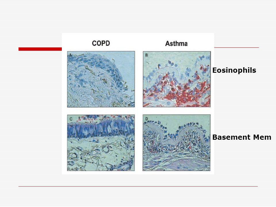 Eosinophils Basement Mem