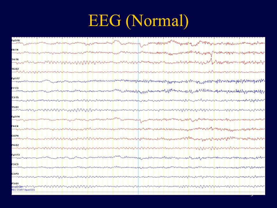 EEG (Seizure) 10