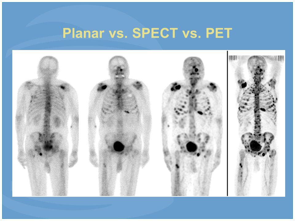 Planar vs. SPECT vs. PET