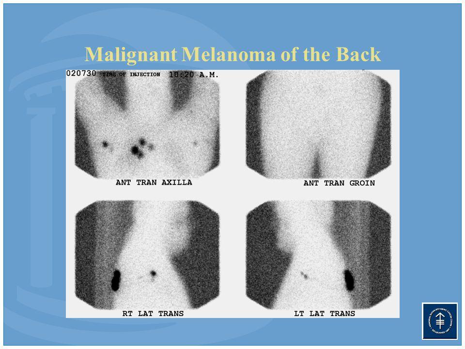 Malignant Melanoma of the Back