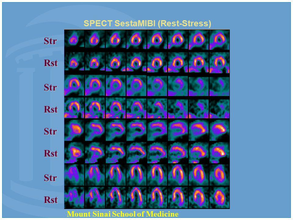 SPECT SestaMIBI (Rest-Stress) Str Rst Str Rst Str Rst Str Rst Mount Sinai School of Medicine
