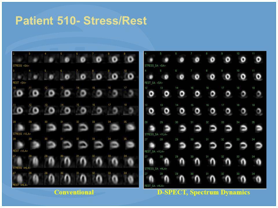 Patient 510- Stress/Rest ConventionalD-SPECT, Spectrum Dynamics