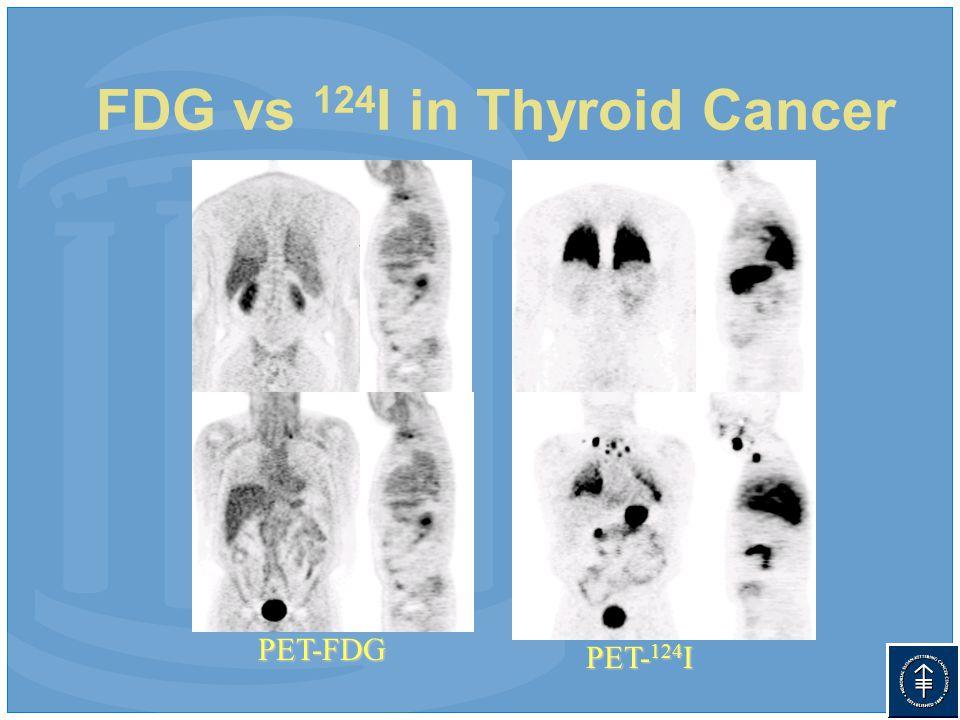FDG vs 124 I in Thyroid Cancer PET- 124 I PET-FDG