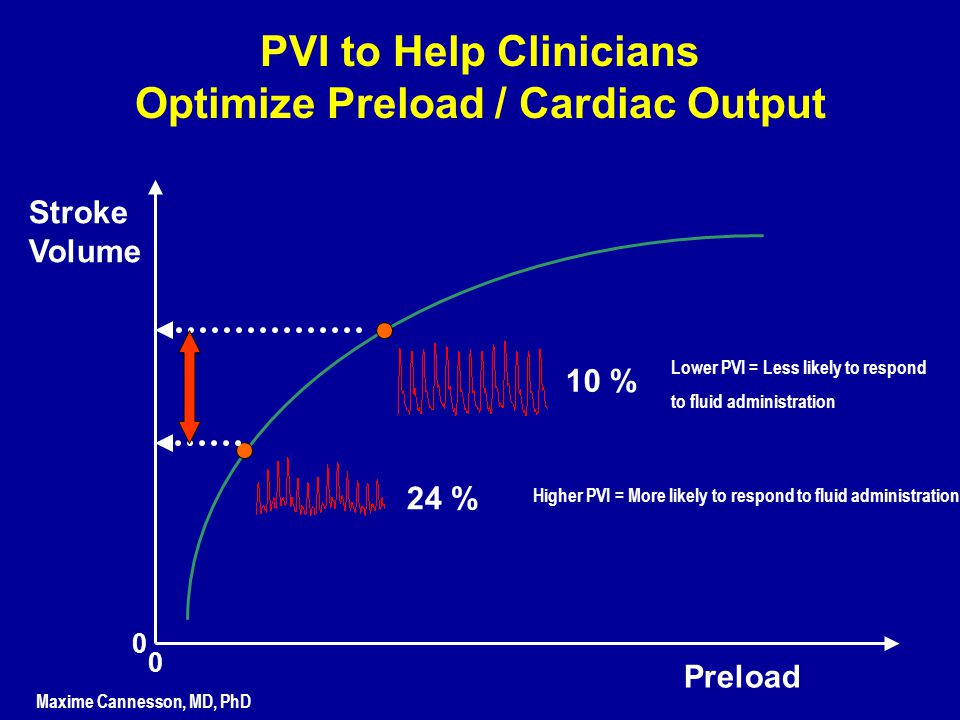 Preload Stroke Volume 0 0 Higher PVI = More likely to respond to fluid administration 24 % 10 % Lower PVI = Less likely to respond to fluid administra
