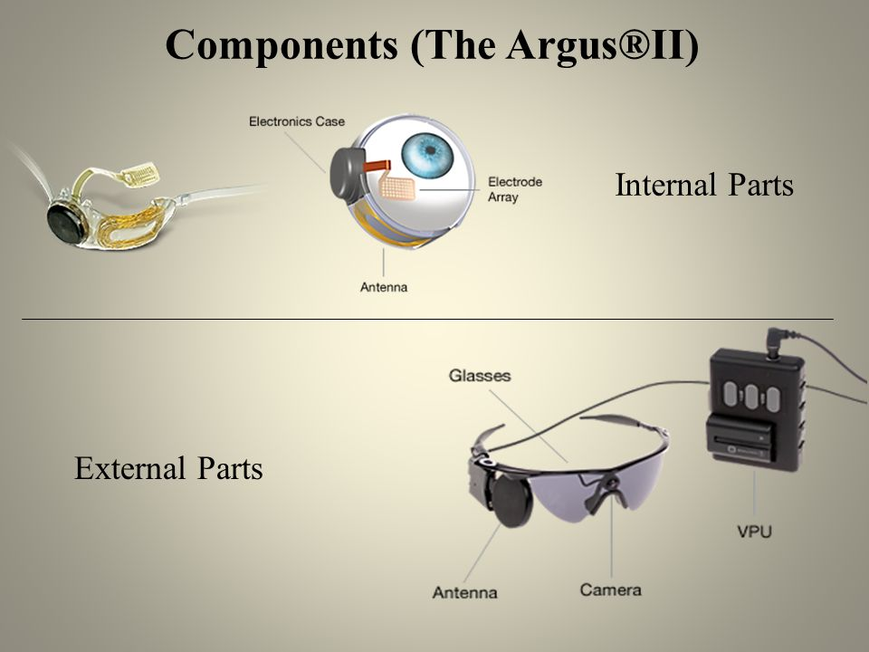 Components (The Argus®II) Internal Parts External Parts