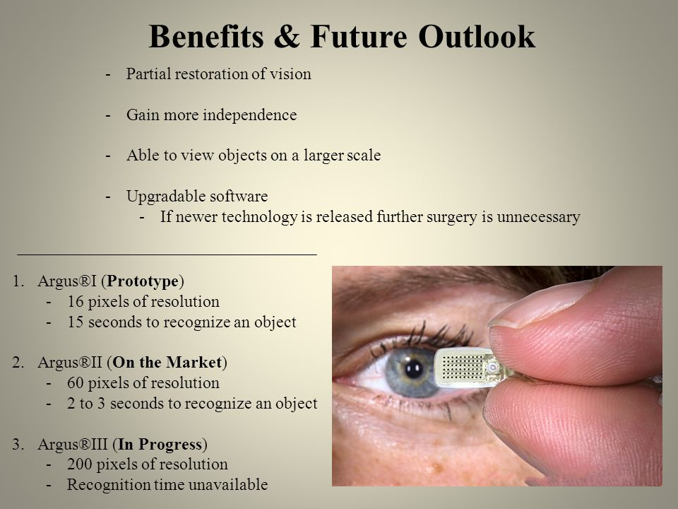 Benefits & Future Outlook -Partial restoration of vision -Gain more independence -Able to view objects on a larger scale -Upgradable software -If newer technology is released further surgery is unnecessary 1.Argus®I (Prototype) -16 pixels of resolution -15 seconds to recognize an object 2.Argus®II (On the Market) -60 pixels of resolution -2 to 3 seconds to recognize an object 3.Argus®III (In Progress) -200 pixels of resolution -Recognition time unavailable