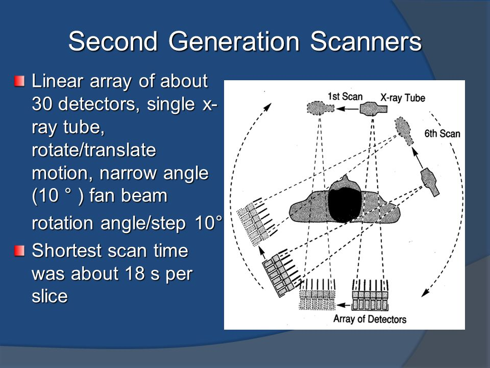 Second Generation Scanners Linear array of about 30 detectors, single x- ray tube, rotate/translate motion, narrow angle (10 ° ) fan beam rotation ang