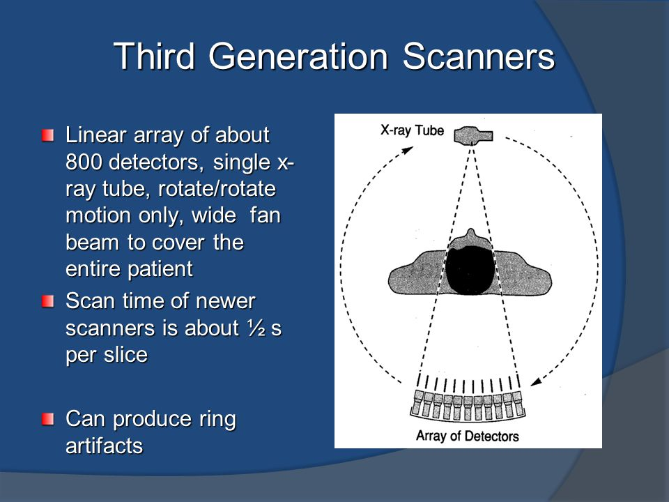 Fourth Generation Scanners Complete circular array of about 4800 stationary detectors Single x-ray tube rotates with in the circular array of detectors Wide fan beam to cover the entire patient Scan time of newer scanners is about ½ s per slice Designed to address ring artifacts
