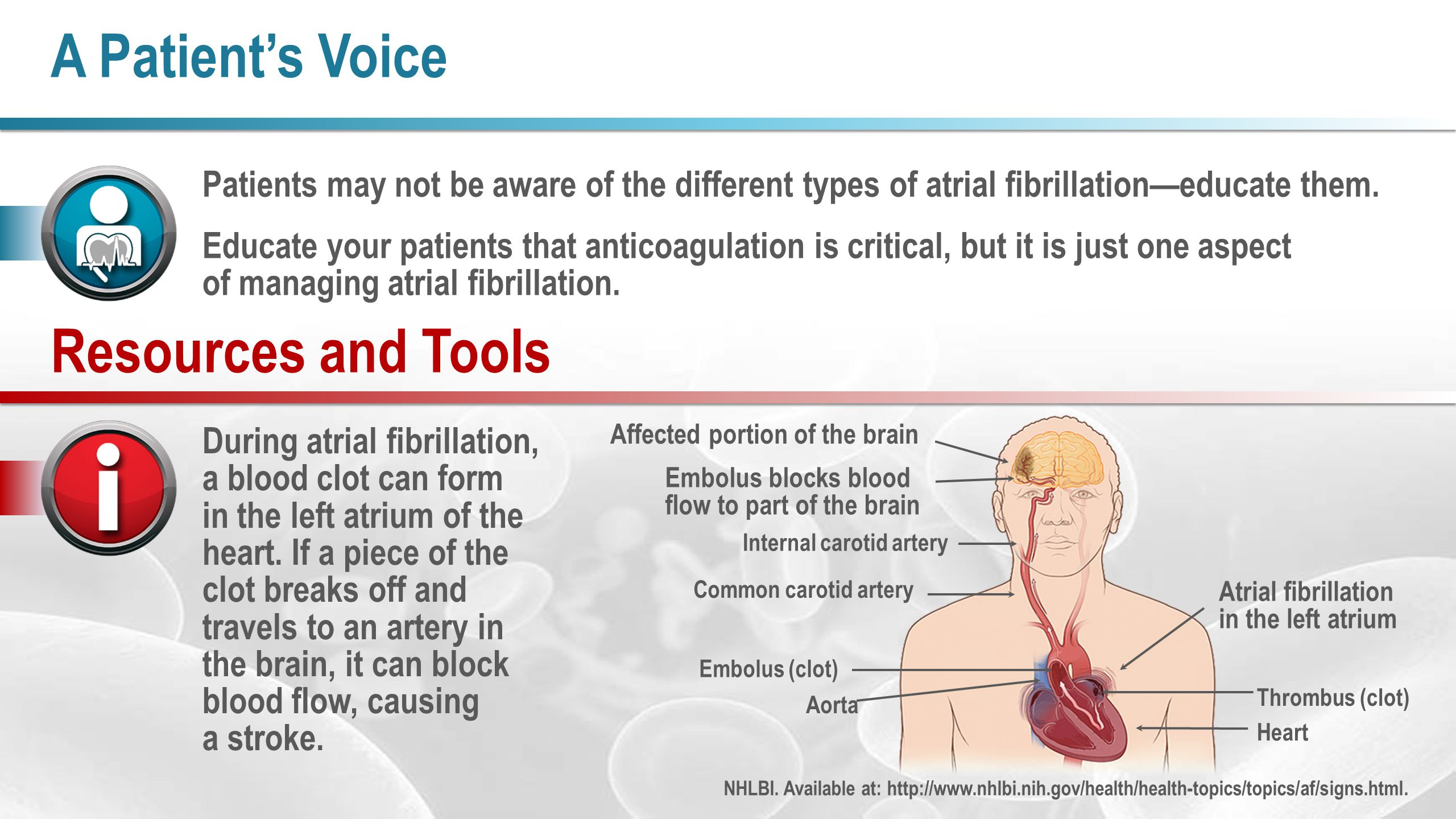 A Patient's Voice During atrial fibrillation, a blood clot can form in the left atrium of the heart.