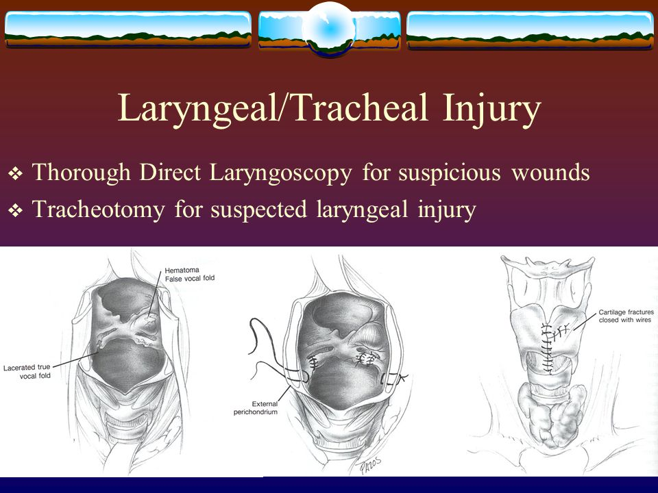 Laryngeal/Tracheal Injury  Thorough Direct Laryngoscopy for suspicious wounds  Tracheotomy for suspected laryngeal injury
