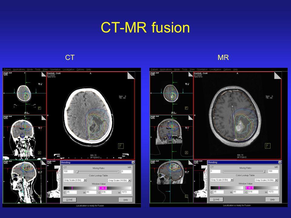 CT-MR fusion CTMR