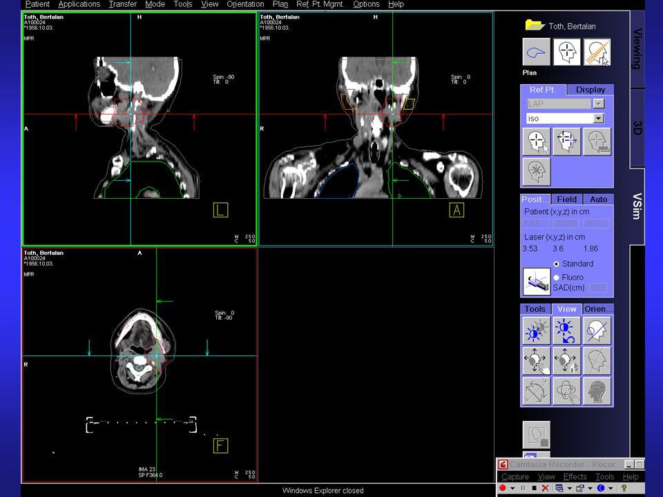 Creation of the virtual beams