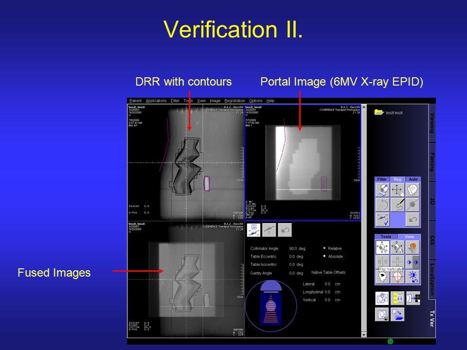 Verification II. DRR with contoursPortal Image (6MV X-ray EPID) Fused Images