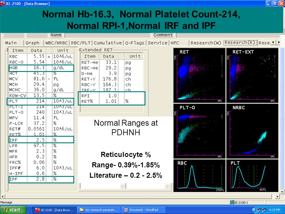 Normal Hb-16.3, Normal Platelet Count-214, Normal RPI-1,Normal IRF and IPF Normal Ranges at PDHNH Reticulocyte % Range- 0.39%-1.85% Literature – 0.2 -