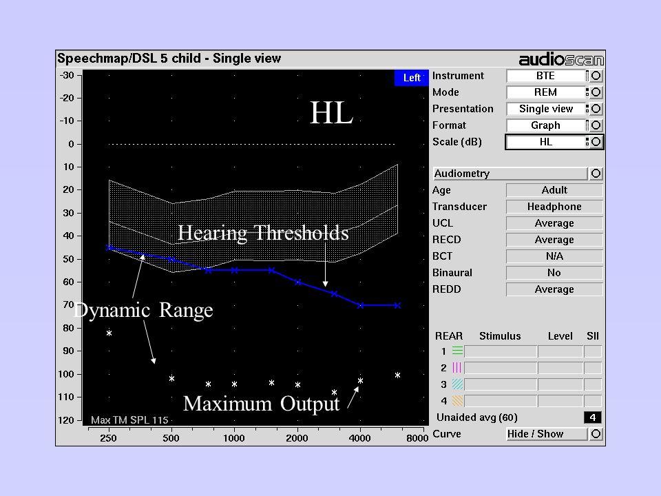 Dynamic Range Hearing Thresholds Maximum Output HL