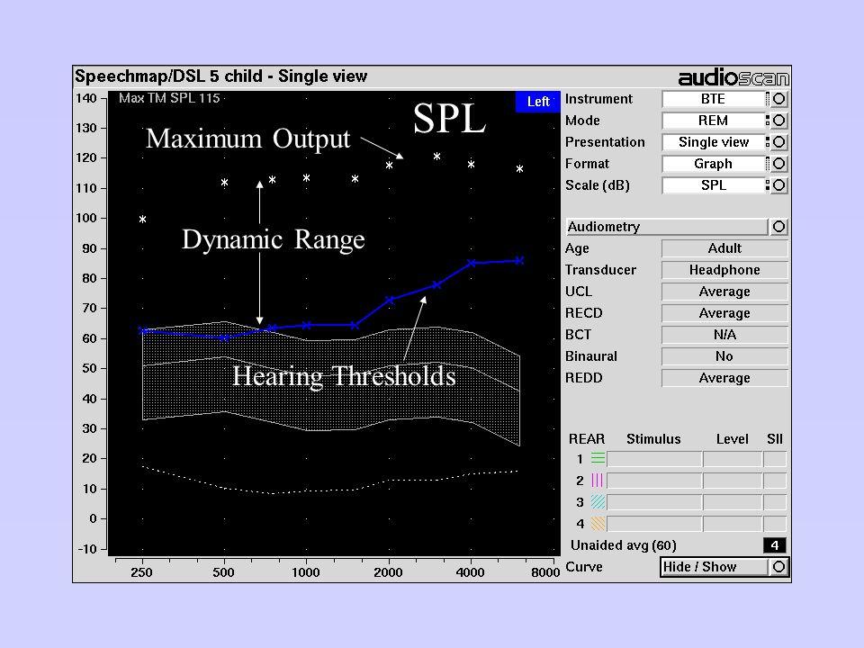 Hearing Thresholds Dynamic Range Maximum Output SPL