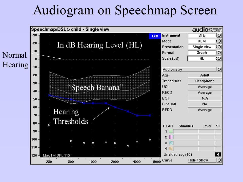 "Audiogram on Speechmap Screen Normal Hearing ""Speech Banana"" Hearing Thresholds In dB Hearing Level (HL)"