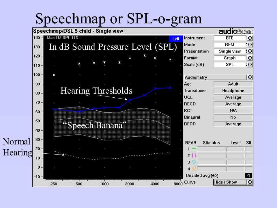 "Speechmap or SPL-o-gram In dB Sound Pressure Level (SPL) Normal Hearing ""Speech Banana"" Hearing Thresholds"