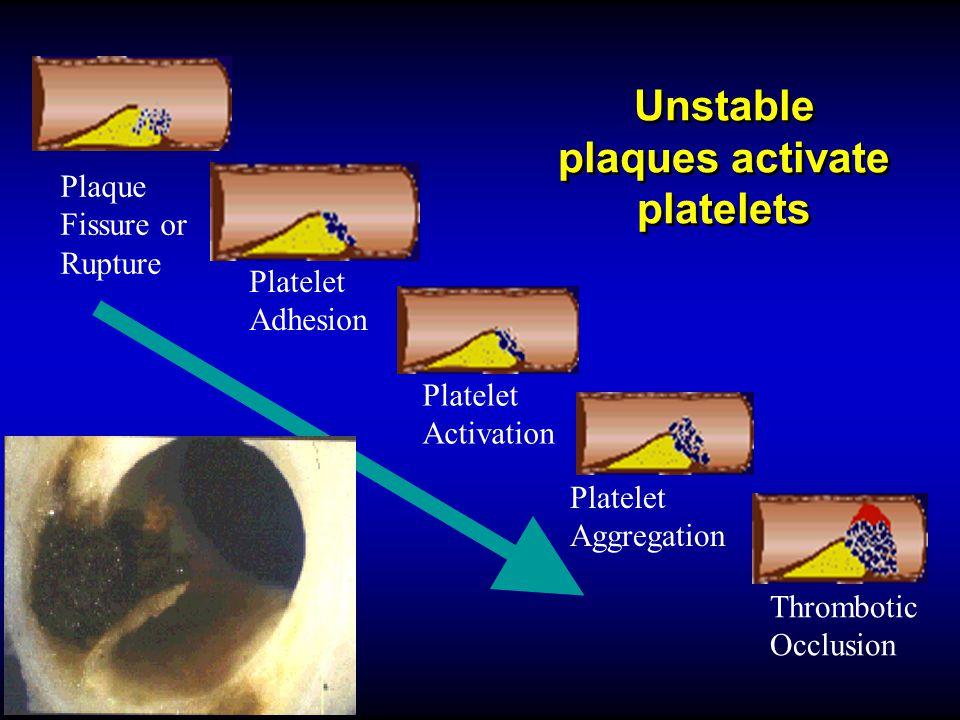 Unstable plaques activate platelets Plaque Fissure or Rupture Platelet Aggregation Platelet Activation Platelet Adhesion Thrombotic Occlusion