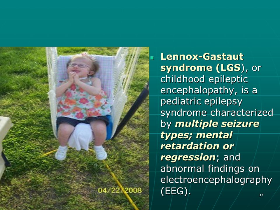 Lennox-Gastaut syndrome (LGS), or childhood epileptic encephalopathy, is a pediatric epilepsy syndrome characterized by multiple seizure types; mental retardation or regression; and abnormal findings on electroencephalography (EEG).