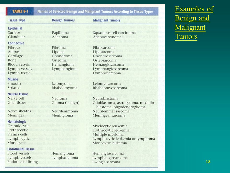 18 Examples of Benign and Malignant Tumors