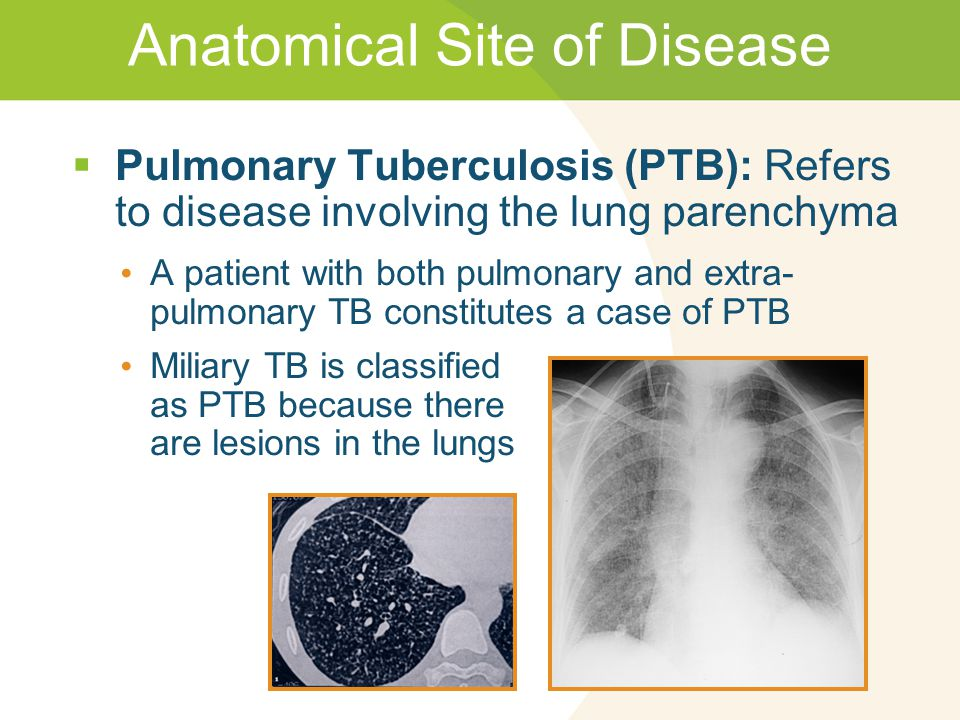 Anatomical Site of Disease  Pulmonary Tuberculosis (PTB): Refers to disease involving the lung parenchyma A patient with both pulmonary and extra- pu