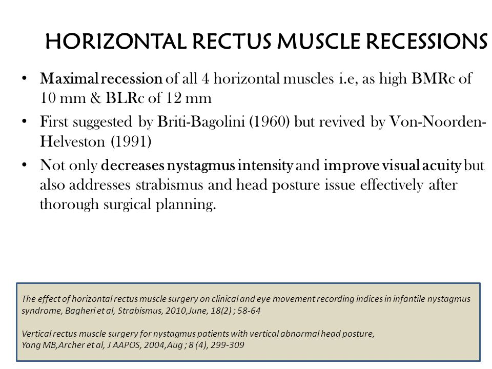 HORIZONTAL RECTUS MUSCLE RECESSIONS Maximal recession of all 4 horizontal muscles i.e, as high BMRc of 10 mm & BLRc of 12 mm First suggested by Briti-