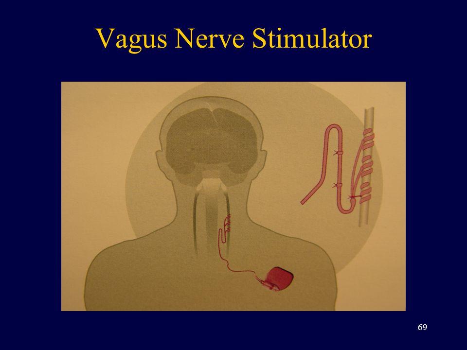 Vagus Nerve Stimulator 69