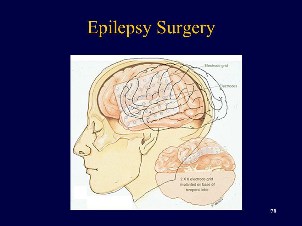 Epilepsy Surgery 78