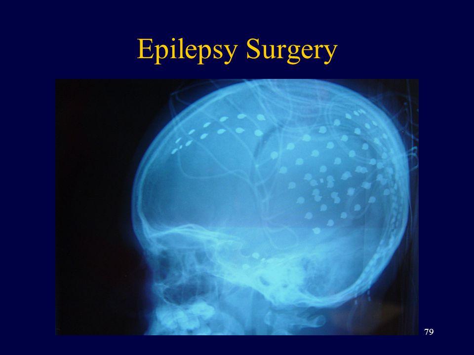 Epilepsy Surgery 79