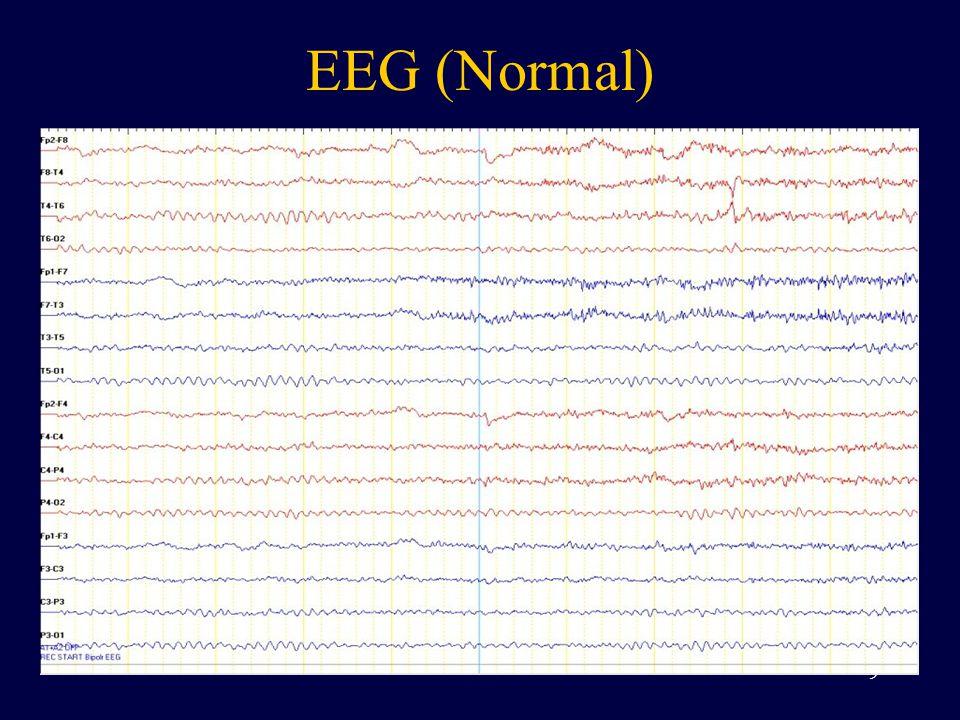 EEG (Normal) 9