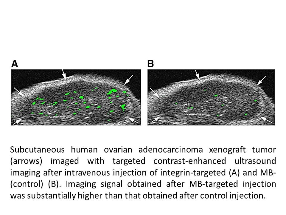 Subcutaneous human ovarian adenocarcinoma xenograft tumor (arrows) imaged with targeted contrast-enhanced ultrasound imaging after intravenous injection of integrin-targeted (A) and MB- (control) (B).