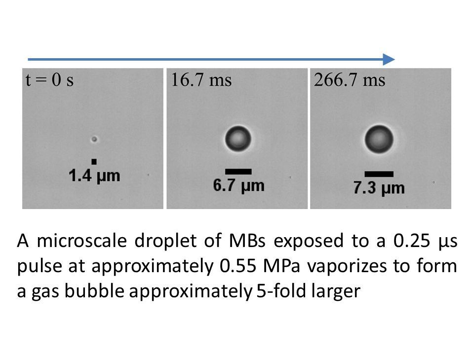 A microscale droplet of MBs exposed to a 0.25 µs pulse at approximately 0.55 MPa vaporizes to form a gas bubble approximately 5-fold larger