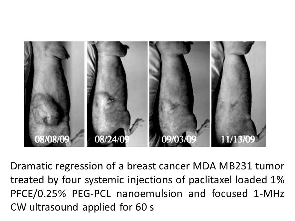 Dramatic regression of a breast cancer MDA MB231 tumor treated by four systemic injections of paclitaxel loaded 1% PFCE/0.25% PEG-PCL nanoemulsion and focused 1-MHz CW ultrasound applied for 60 s