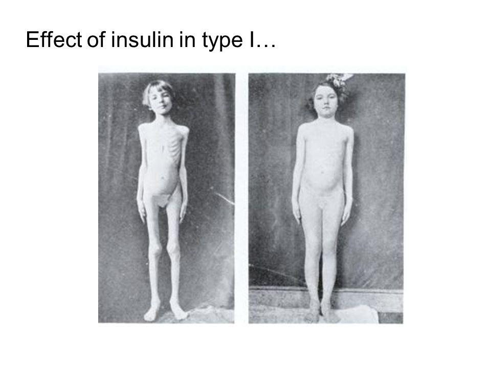 Effect of insulin in type I…