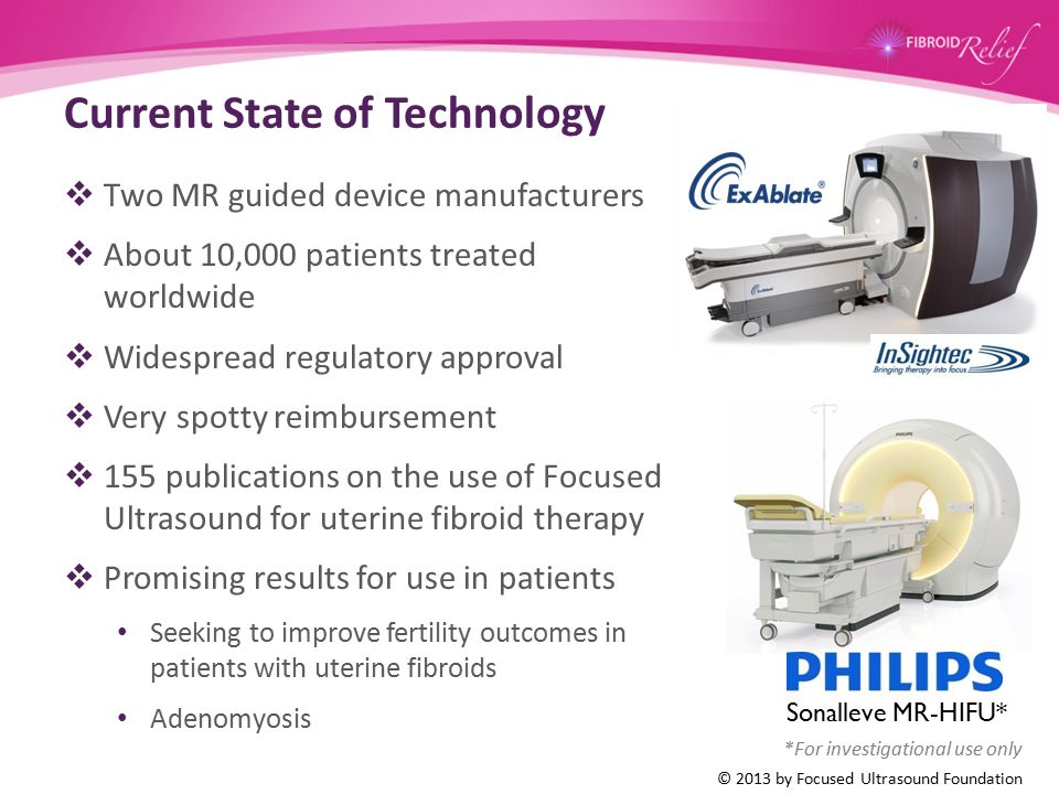 Current State of Technology  Two MR guided device manufacturers  About 10,000 patients treated worldwide  Widespread regulatory approval  Very spo