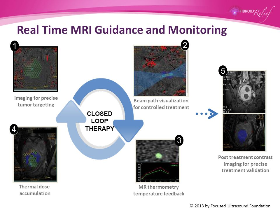 Real Time MRI Guidance and Monitoring 3 4 1 Imaging for precise tumor targeting CLOSED LOOP THERAPY Beam path visualization for controlled treatment 2