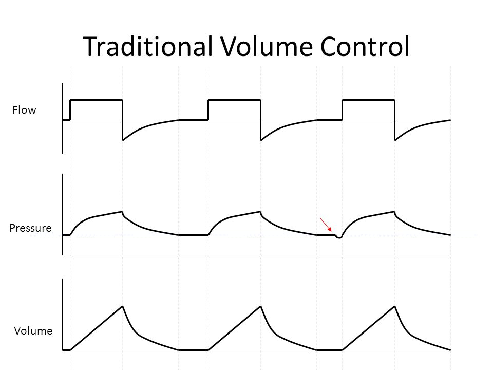 Traditional Volume Control Flow Pressure Volume