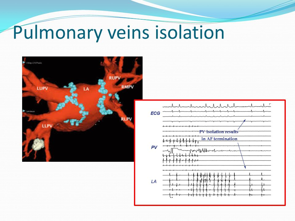 Pulmonary veins isolation