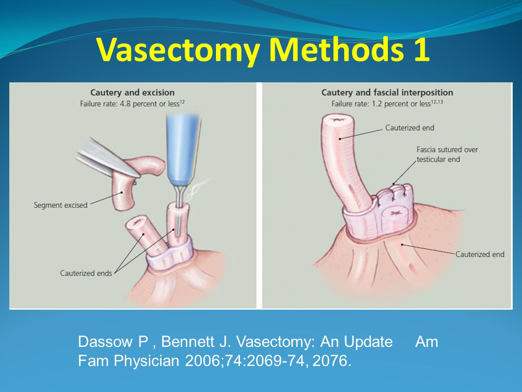 Vasectomy Methods 1 Dassow P, Bennett J.