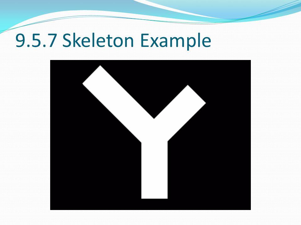 9.5.7 Skeleton Example