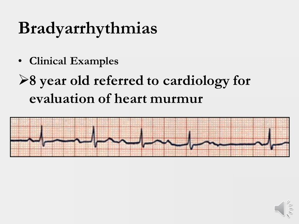 Bradyarrhythmias Clinical Examples  7 year old with history of severe cold symptoms, lethargy, dyspnea and echocardiogram demonstrated severe ventricular dysfunction