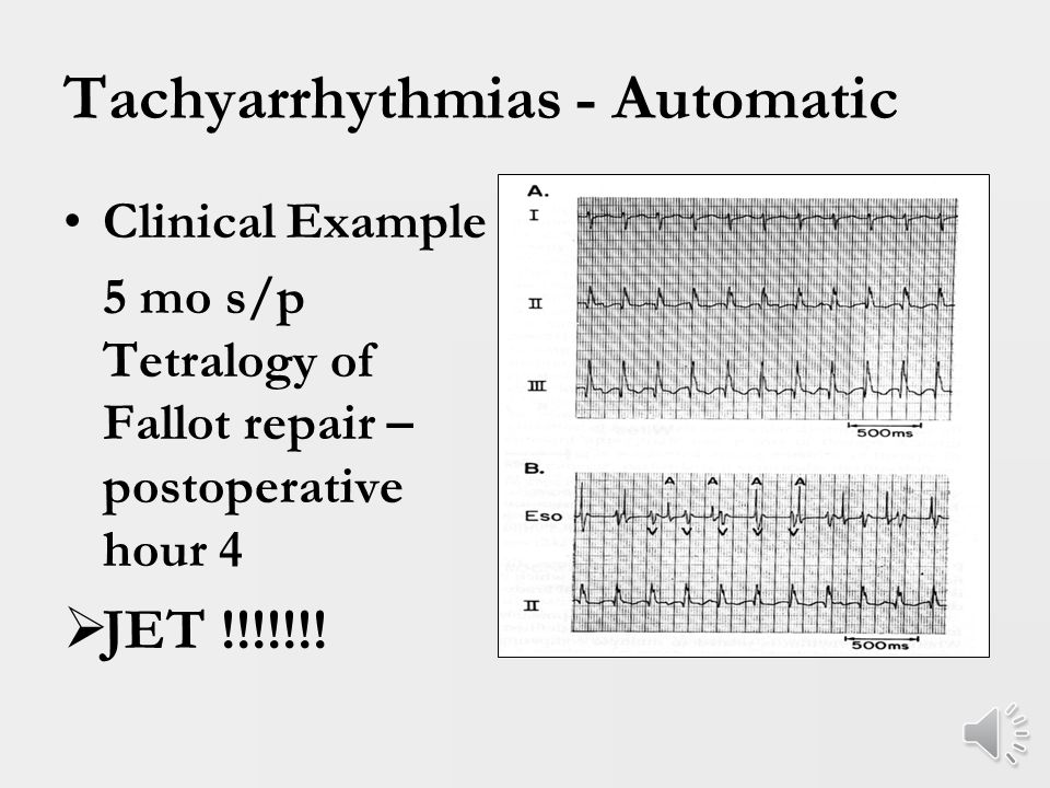 Tachyarrhythmias - Automatic EAT – Ectopic Atrial Tachycardia Atrial ectopy from a single area of atrial myocardium other than sinus node Commonly results in ventricular dysfunction