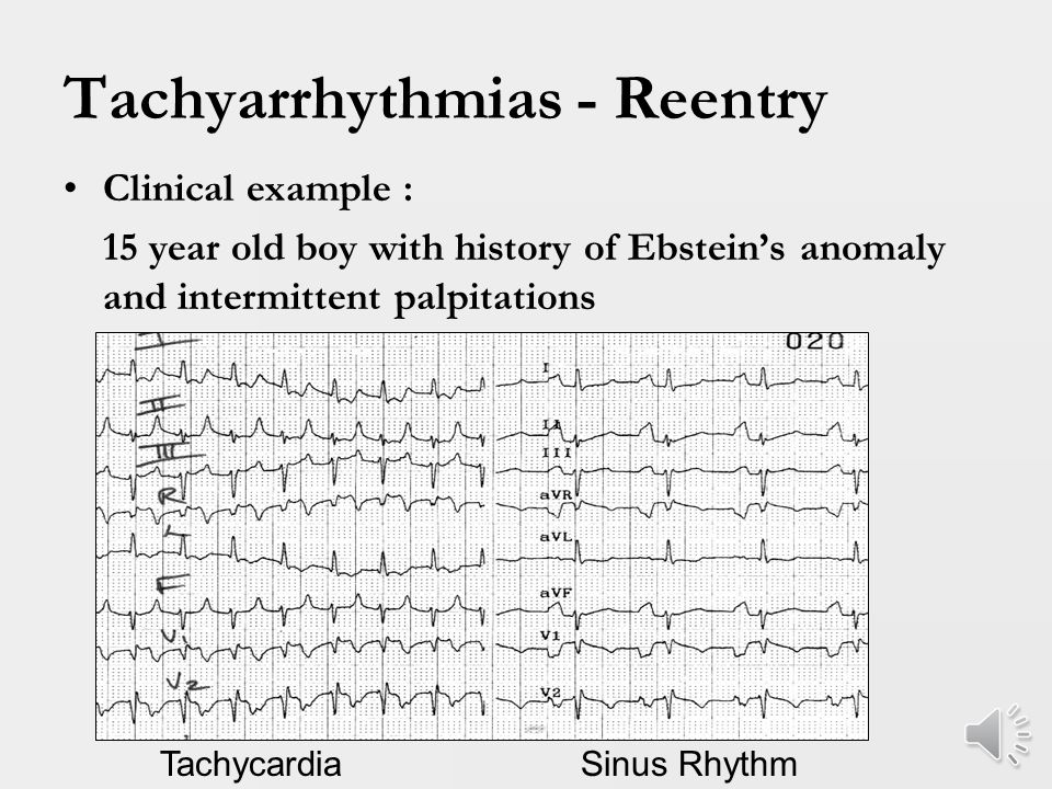Tachyarrhythmias - Reentry Accessory pathway tachycardia is most common etiology of tachycardia in children More common in males Typical route is from atria to ventricles via AV node and retrograde via accessory pathway – Orthodromic Reentrant Tachycardia (ORT)