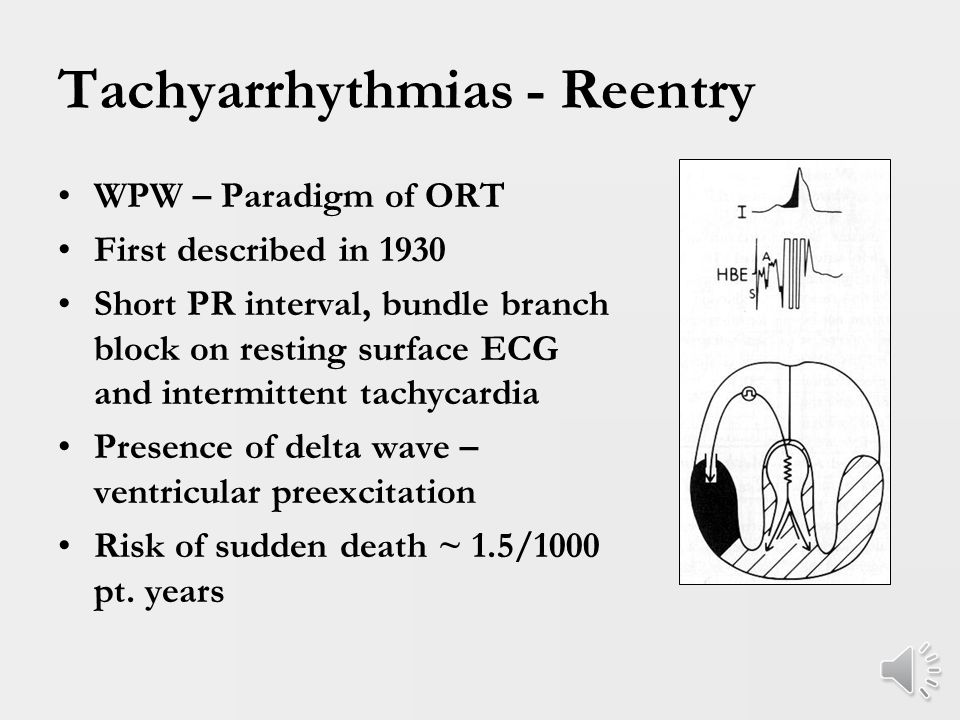 Tachyarrhythmias - Reentry Other peaks for tachycardia recurrence are 5-8 years and 10-15 years ~ 40% of patients with tachycardia as young infants will recur some time in life Reasons for this finding unclear