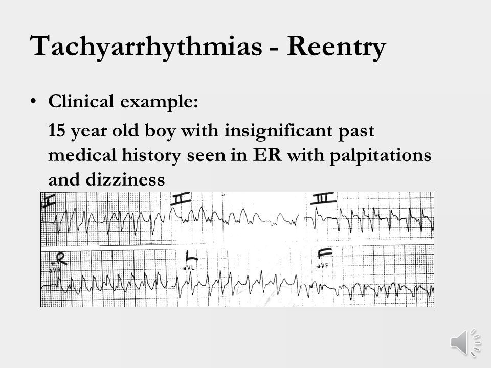 Tachyarrhythmias - Reentry WPW – Paradigm of ORT First described in 1930 Short PR interval, bundle branch block on resting surface ECG and intermittent tachycardia Presence of delta wave – ventricular preexcitation Risk of sudden death ~ 1.5/1000 pt.