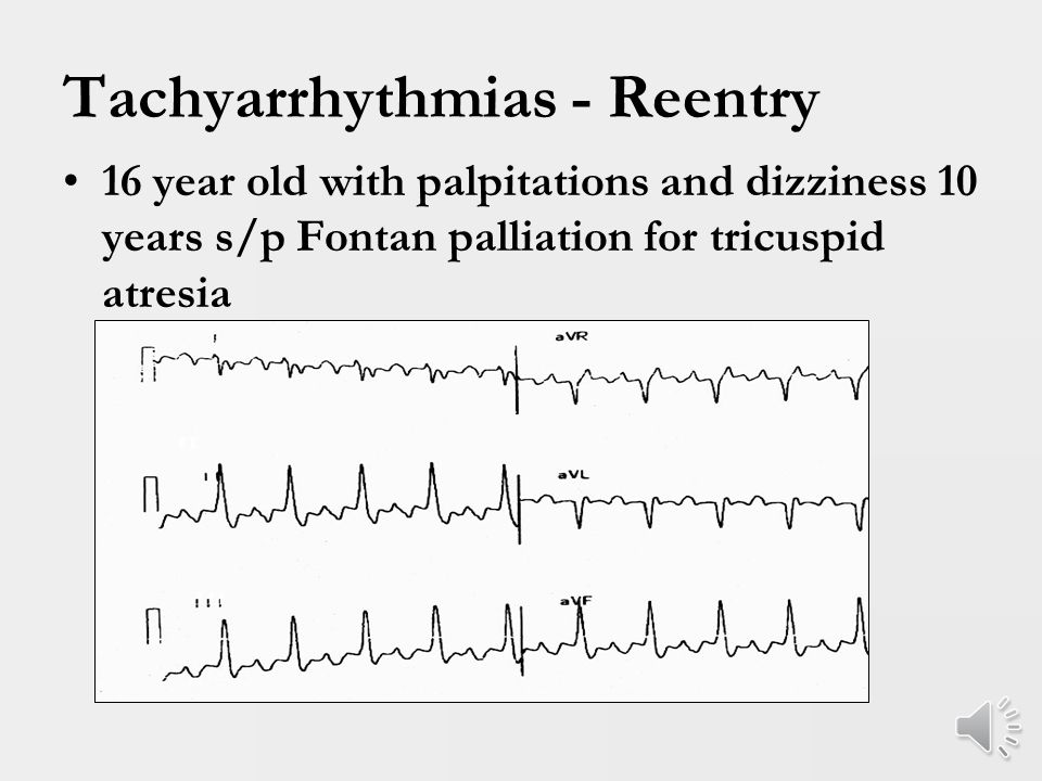 Tachyarrhythmias - WPW WPW – Key points: 1.Risk of death is not from SVT/ORT but instead from rapidly conducted A fib (rare in infants).