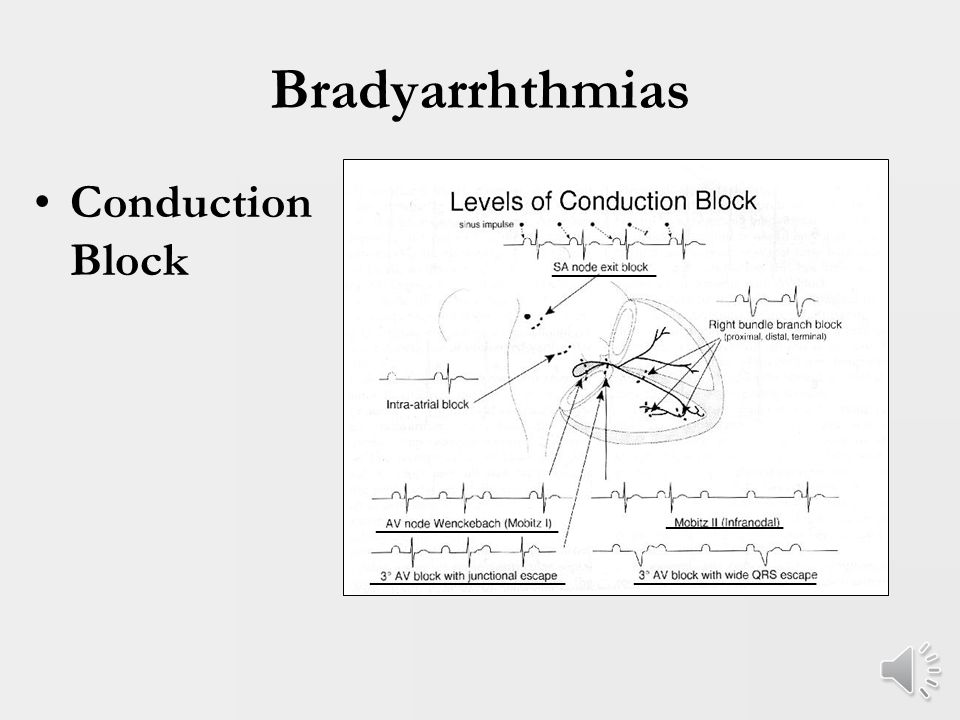 Bradyarrhythmias 75% of all DTGA patients undergoing Mustard at Columbia not in sinus rhythm at follow-up